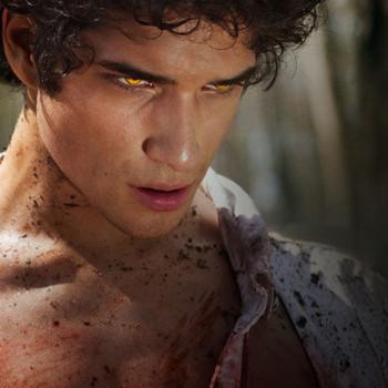 Teen Wolf - Die komplette erste Staffel [4 DVDs]